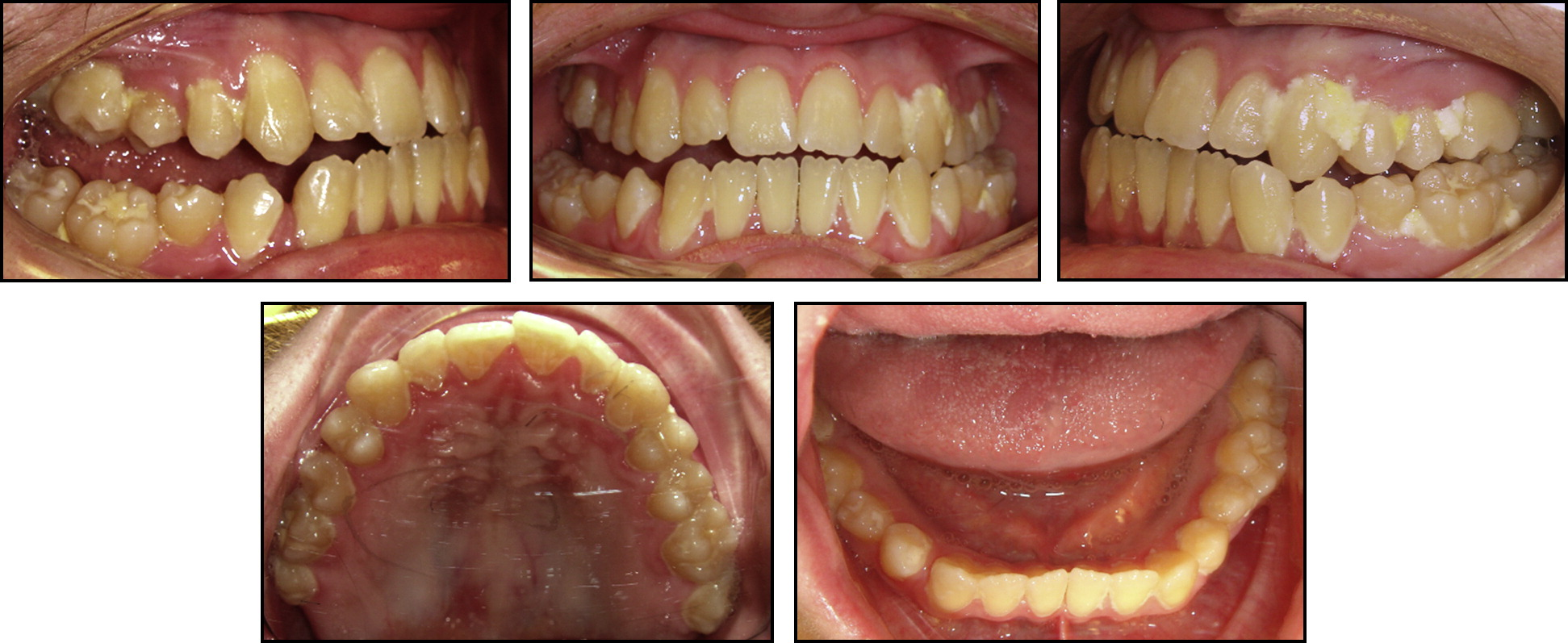 orthodontic treatment of a patient with duchenne muscular
