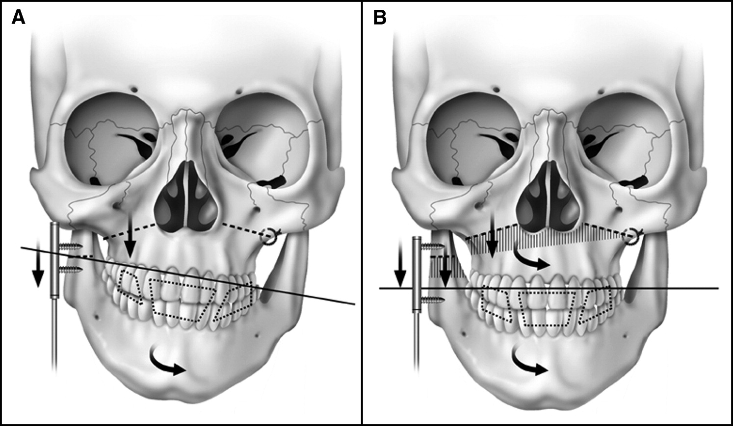combined maxillary and mandibular distraction osteogenesis in patients with hemifacial